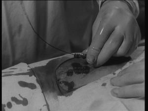 Film Katetrisační angiografie